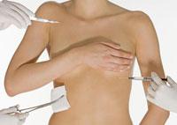 Implanturile mamare ( II )